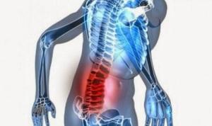 nyeri tulang belakang